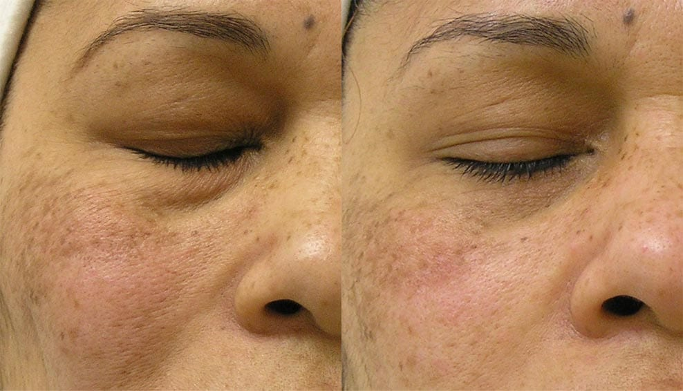 hydrafacial-before-after-7
